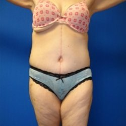 Manhattan abdominoplasty after 11